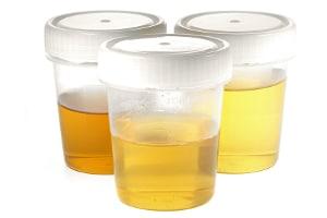 Bei Amphetamin liegt die Nachweisbarkeit im Urin bei etwa 1 bis 3 Tagen.