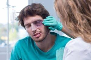 Schmerzensgeld für eine gebrochene Nase wird nach einer Schmerzensgeldtabelle gezahlt.